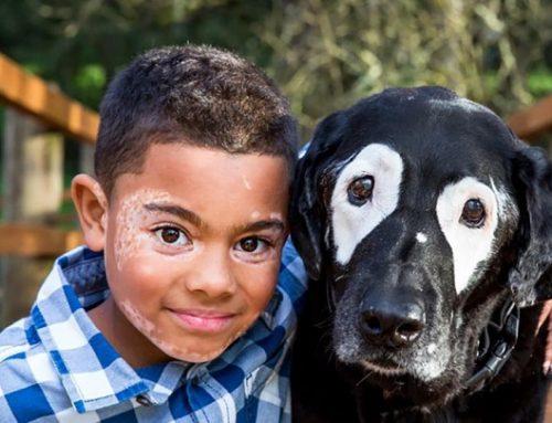 El niño con vitíligo que ha conocido a un perro con su mismo problema